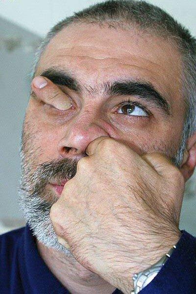 a nez et oeil